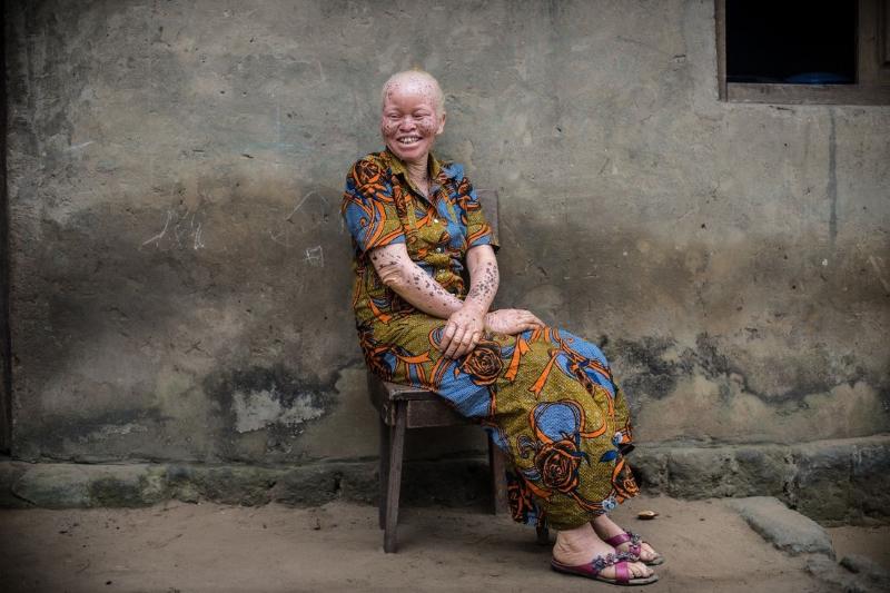 Senhora albina